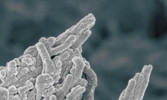 צילום במיקרוסקופ אלקטרונים | צילום: Melinda Duer/ Cathy Shanahan