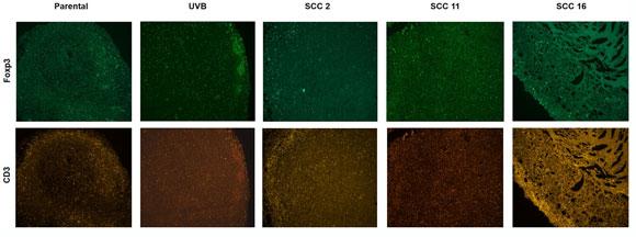 גידולים הומוגניים (SCC) מראים תגובה חיסונית חזקה יותר מגידול הטרוגני (UVB) | צילום במיקרוסקופ פלואורסצנטי: סופי טרביז'