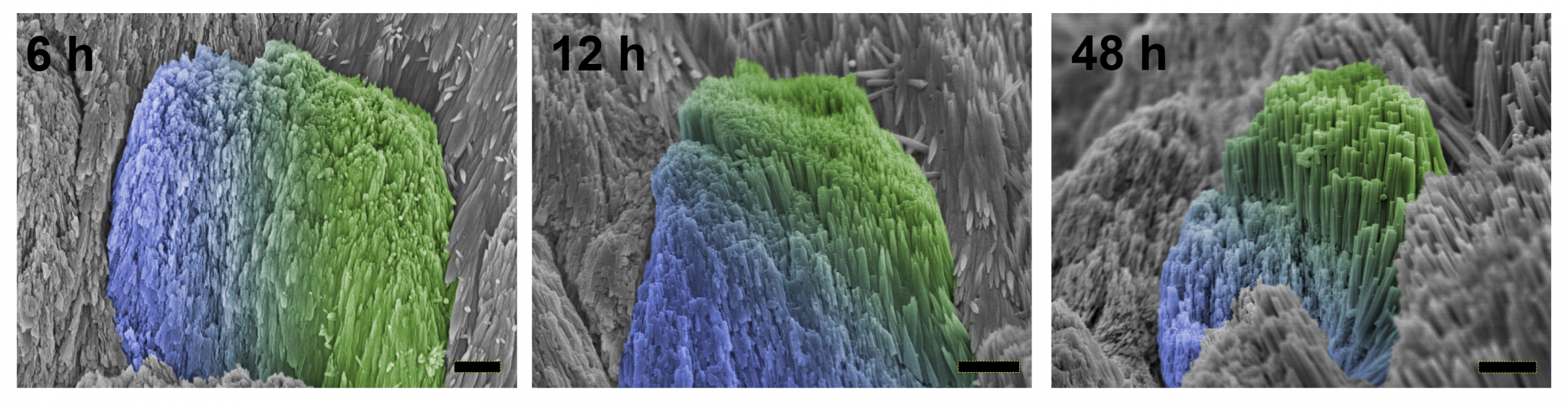 האמייל הטבעי (כחול) והמתוקן (ירוק) 6, 12 ו-48 שעות לאחר מריחת הג'ל   צילום במיקרוסקופ אלקטרונים מתוך מאמר המחקר