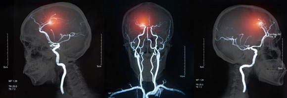 כ-60 אחוז מהאנשים שיחוו אירוע מוחי ימותו או יסבלו מנכות ארוכת טווח. מיפוי כלי דם במוח | מקור: Shutterstock