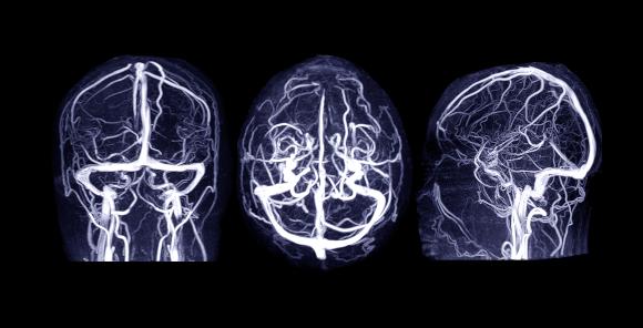 תמונה ברורה של הוורידים במוח בסריקת MRI | צילום: samunella, Shutterstock