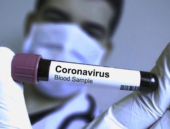 מבחנה עם דם נגוע | אילוסטרציה: Soni's, Shutterstock