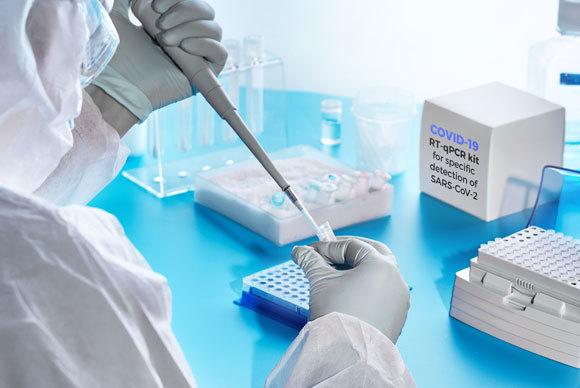 בדיקת מעבדה לקורונה | צילום: anyaivanova, Shutterstock