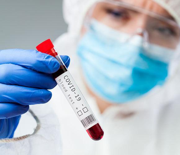 דגימות דם של נבדקים | צילום: Cryptographer, Shutterstock