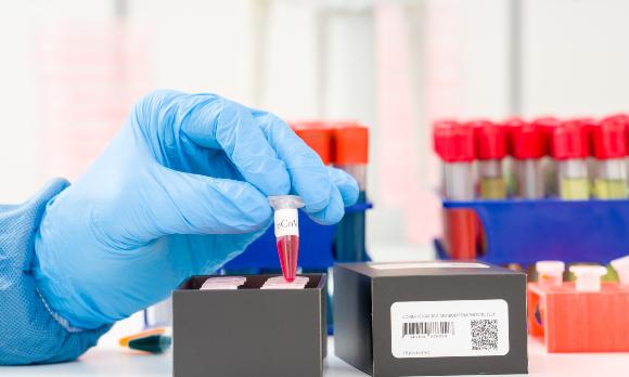 בדיקות דם של חולי קורונה | צילום אילוסטרציה: science photo, Shutterstock
