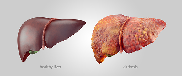 אחרי פגיעות חוזרות ונשנות בכבד מנגנון התיקון של הכבד עשוי לצאת מאיזון ותתפתח שחמת הכבד. איור: eranicle Shutterstock