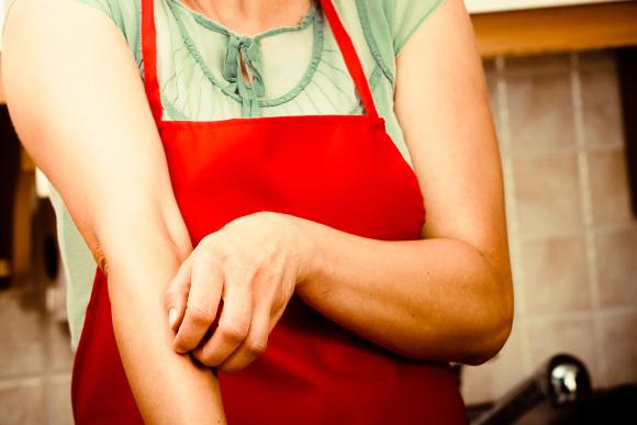 אישה מגרדת פריחה אלרגית בעור | צילום: Anetlanda, Shutterstock