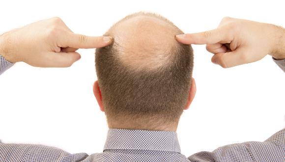 ראש מקריח   צילום: CatherineLProd, Shutterstock