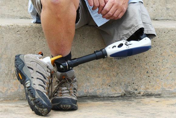 הרגל הבריאה מתעייפת מהר, בעיקר בהליכה על משטח שאינו ישר ואחיד. אדם עם רגל תותבת | צילום: Shutterstock