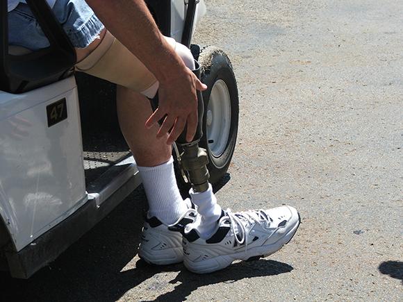 רגל תותבת מכנית | צילום: Roger Dale Pleis, Shutterstock