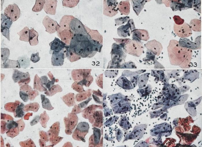 שלבים שונים בחייהם של תאי צוואר הרחם, כפי שתיעד פאפאניקולאו עצמו (צילום מיקרוסקופי צבוע) | מקור: Wellcome Collection