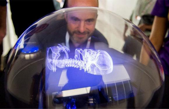 תצוגת תלת-ממד נפחית של חברת Voxon לצרכי המחשה רפואית | צילום: Haggispizza, ויקיפדיה